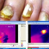 QuadroStarPRO 980 Лазерный липолиз