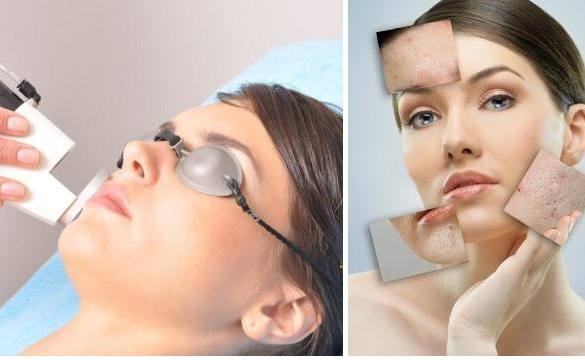 Неодимовый лазер в современной косметологии
