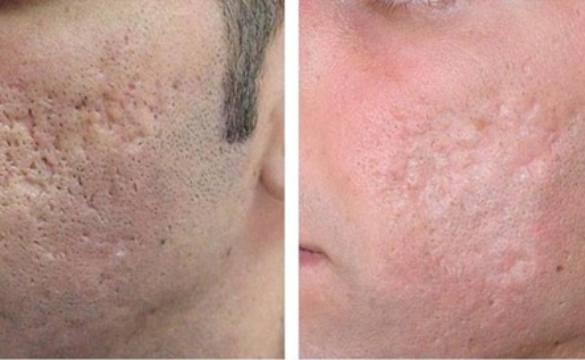 Шлифовка кожи лица и тела эрбиевым лазером